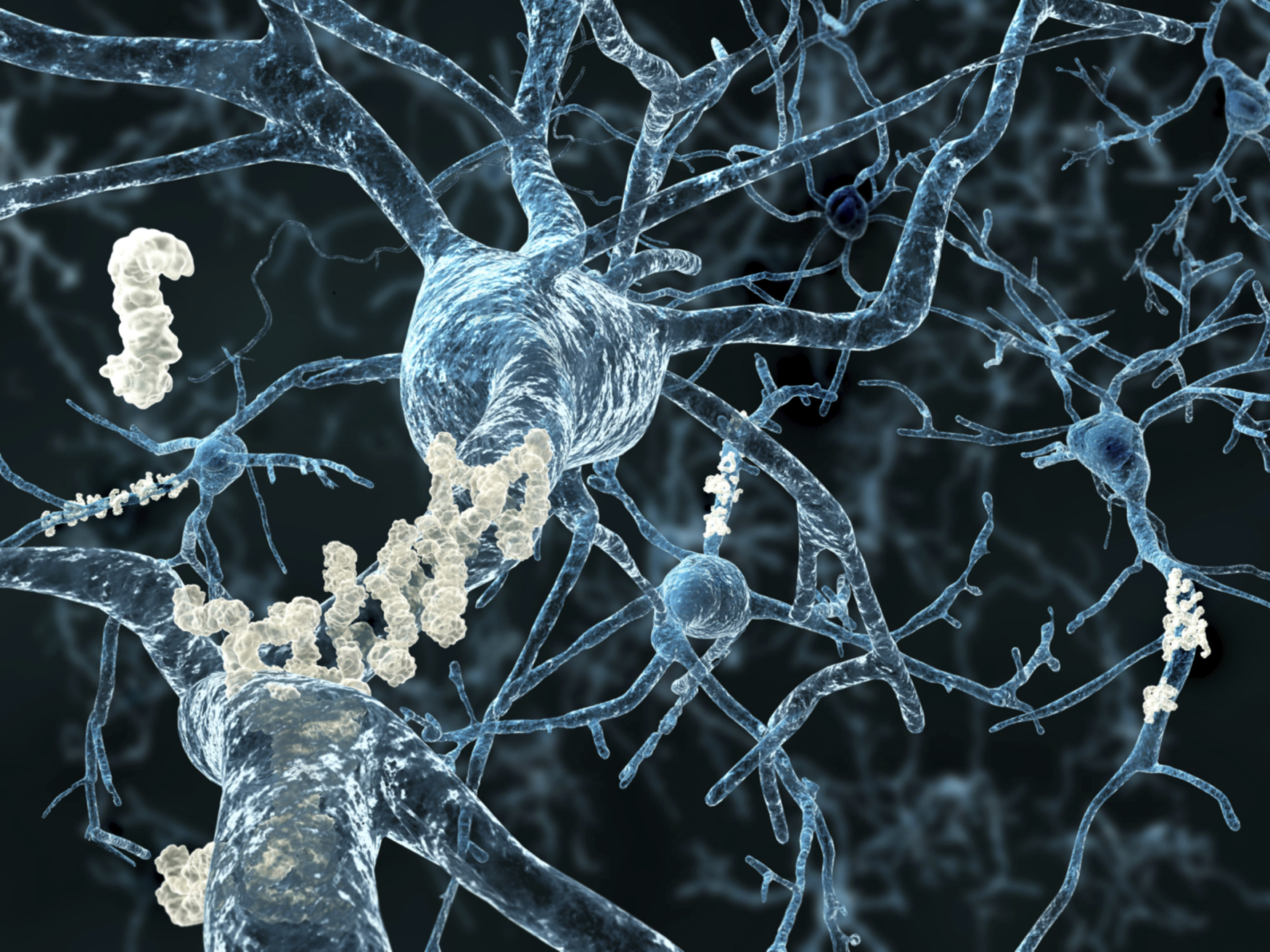 Infection may spur hallmark protein for Alzheimer's disease
