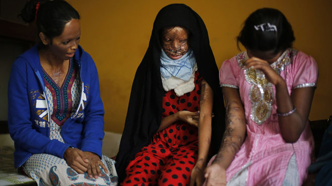 Victims of acid attacks in India saying new law restricting sales being ignored