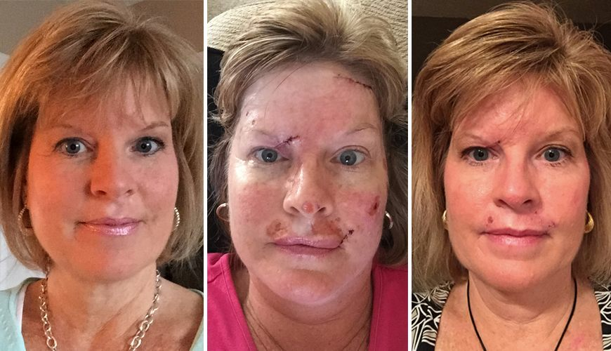 Woman shares skin cancer photos to show effects of tanning habit