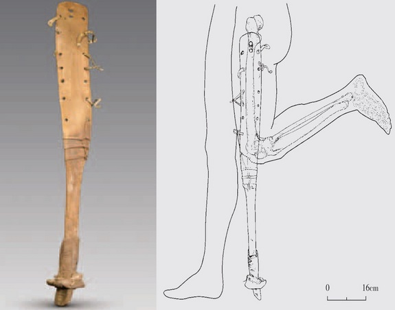 Prosthetic leg with hoofed foot discovered in ancient Chinese tomb