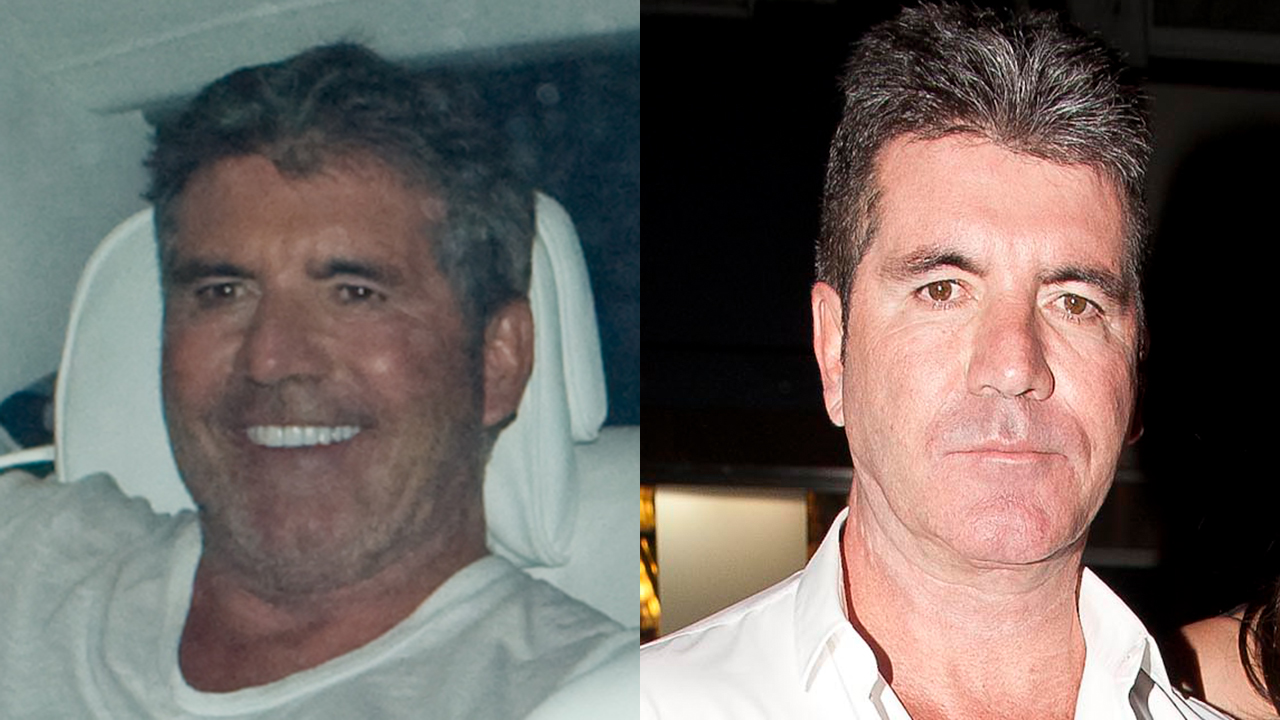 Simon Cowell shocks fans with wide-eyed, taut new look