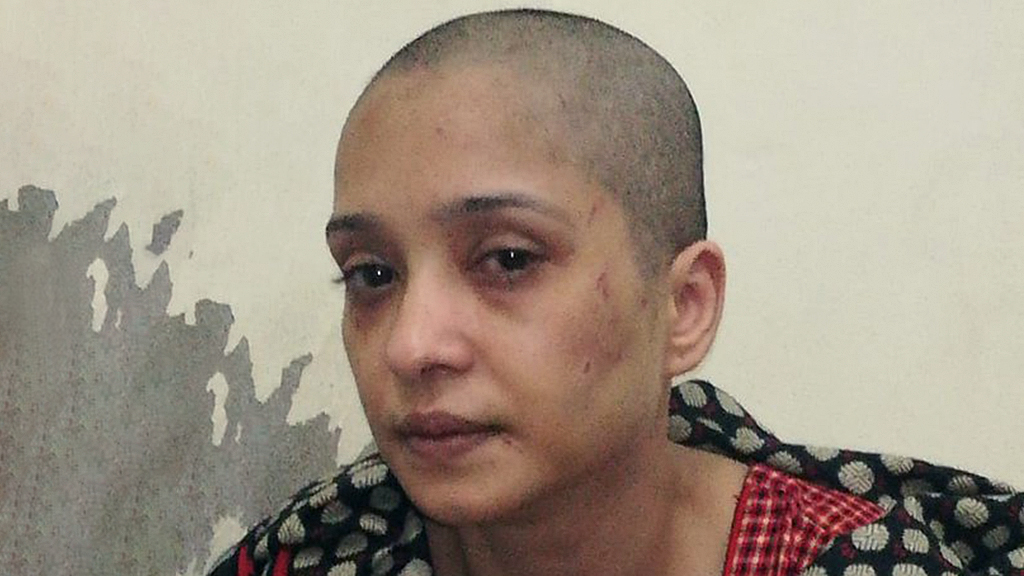 Pakistani woman says husband beat her, shaved her head after she refused to dance for him thumbnail