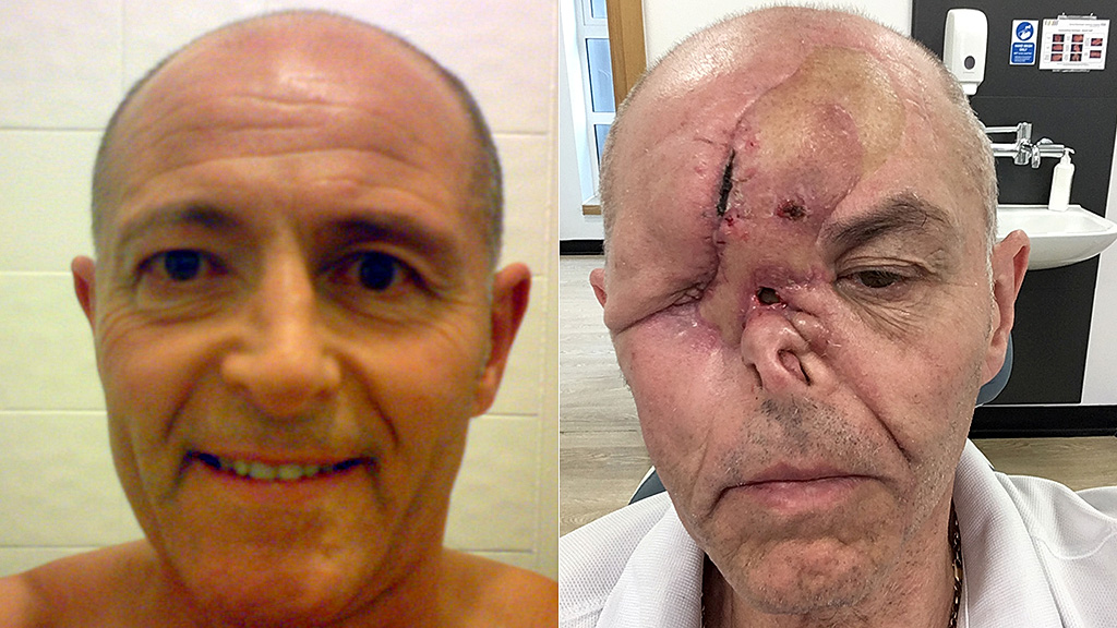 Dad loses eye, part of nose after common symptom leads to cancer diagnosis