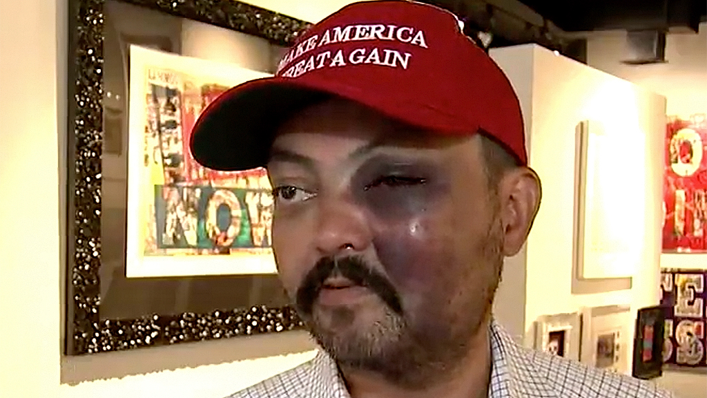 Westlake Legal Group Jahangir-John-Turan-FOX5 New Jersey man allegedly beaten over MAGA hat claims NYC art pop-up got his attackers drunk Melissa Leon fox-news/us/us-regions/northeast/new-york fox-news/us/us-regions/northeast/new-jersey fox-news/us/crime fox-news/person/donald-trump fox news fnc/us fnc b1524707-b68b-567d-9a7e-30ba40513515 article