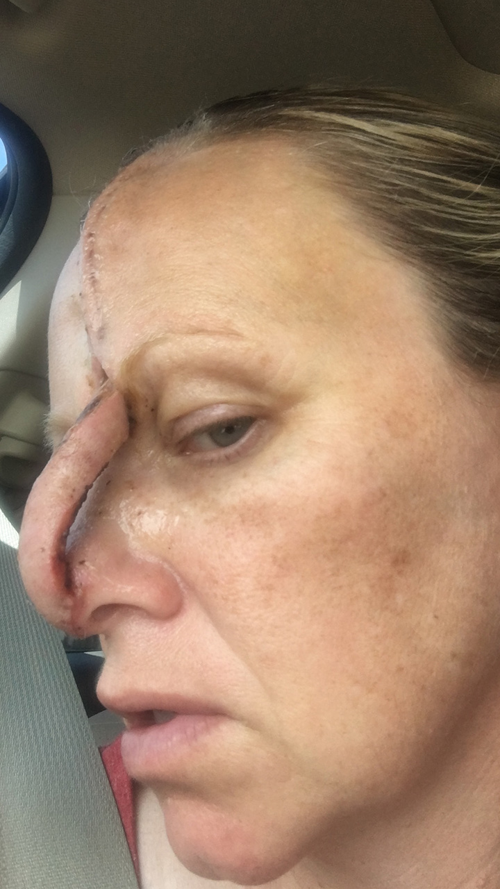 'Diehard' tanner left with hole in face after skin cancer diagnosis