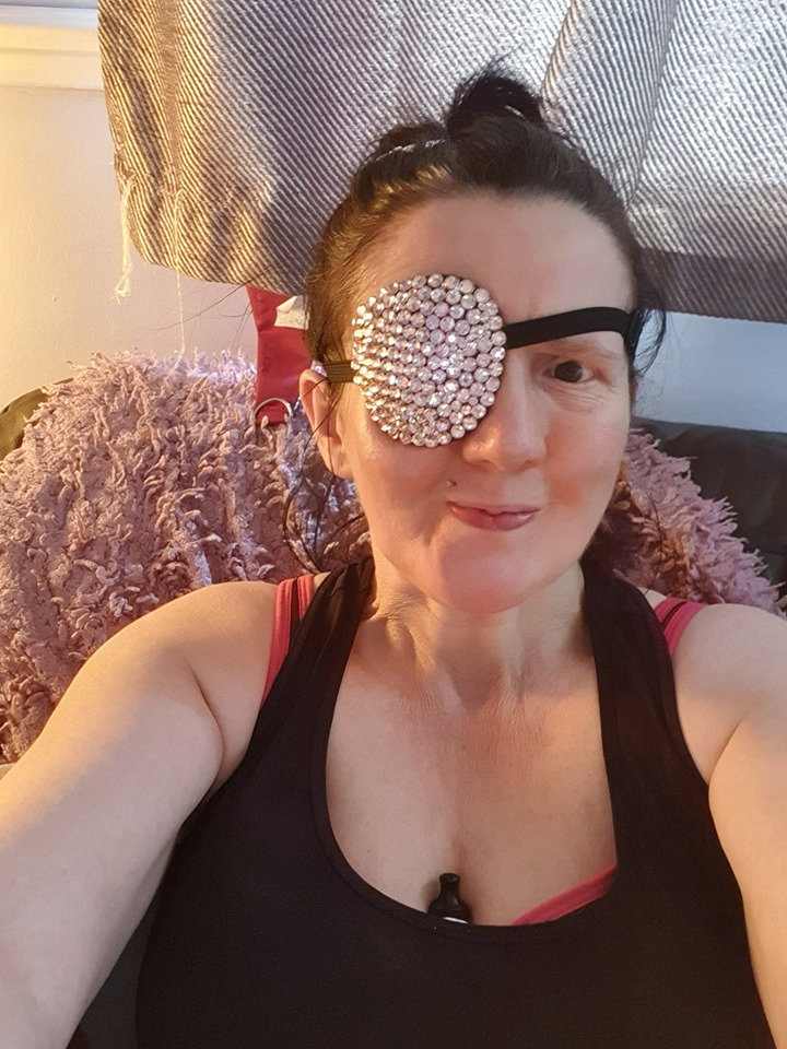 Mom feels like 'Walking Dead' extra after losing part of eye in freak accident, she says