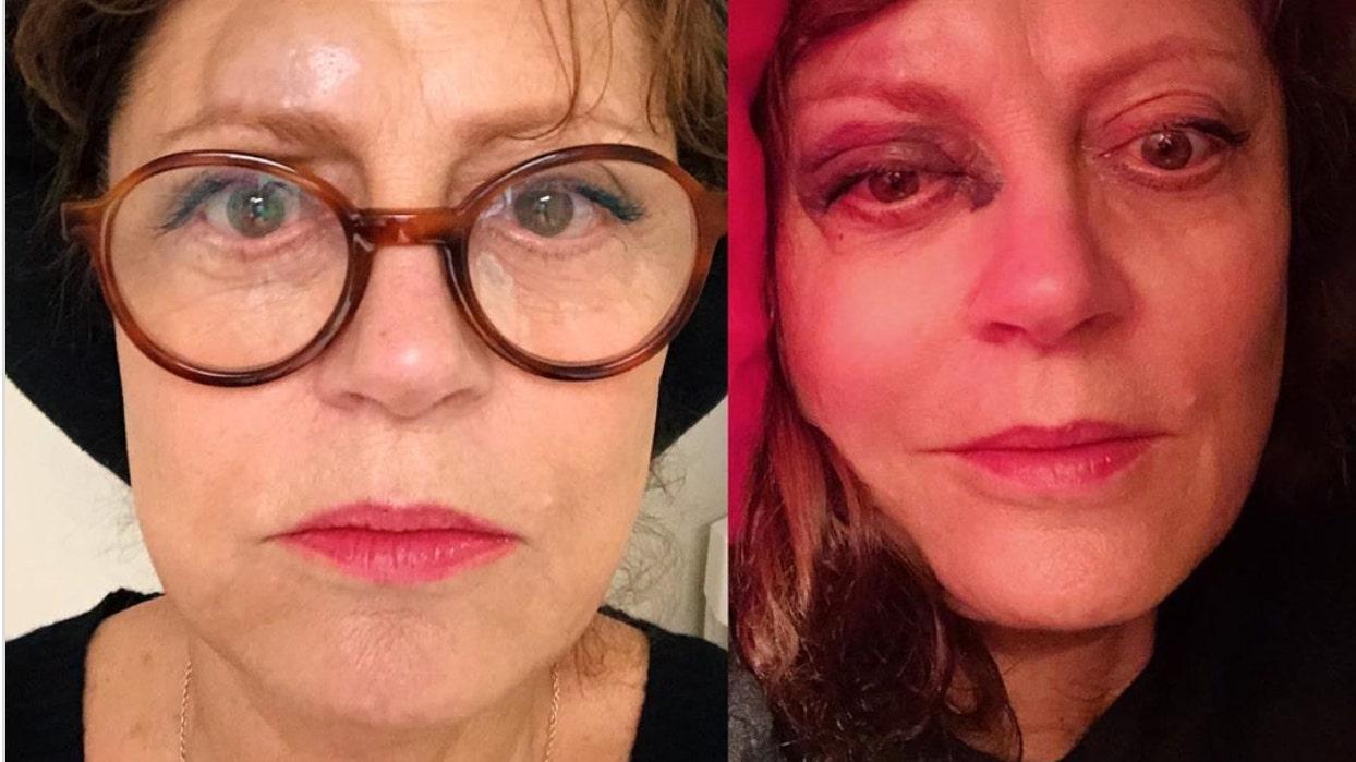 Susan Sarandon erleidet Gehirnerschütterung nach dem dramatischen Einbruch der Aktien Fotos von anderen Verletzungen