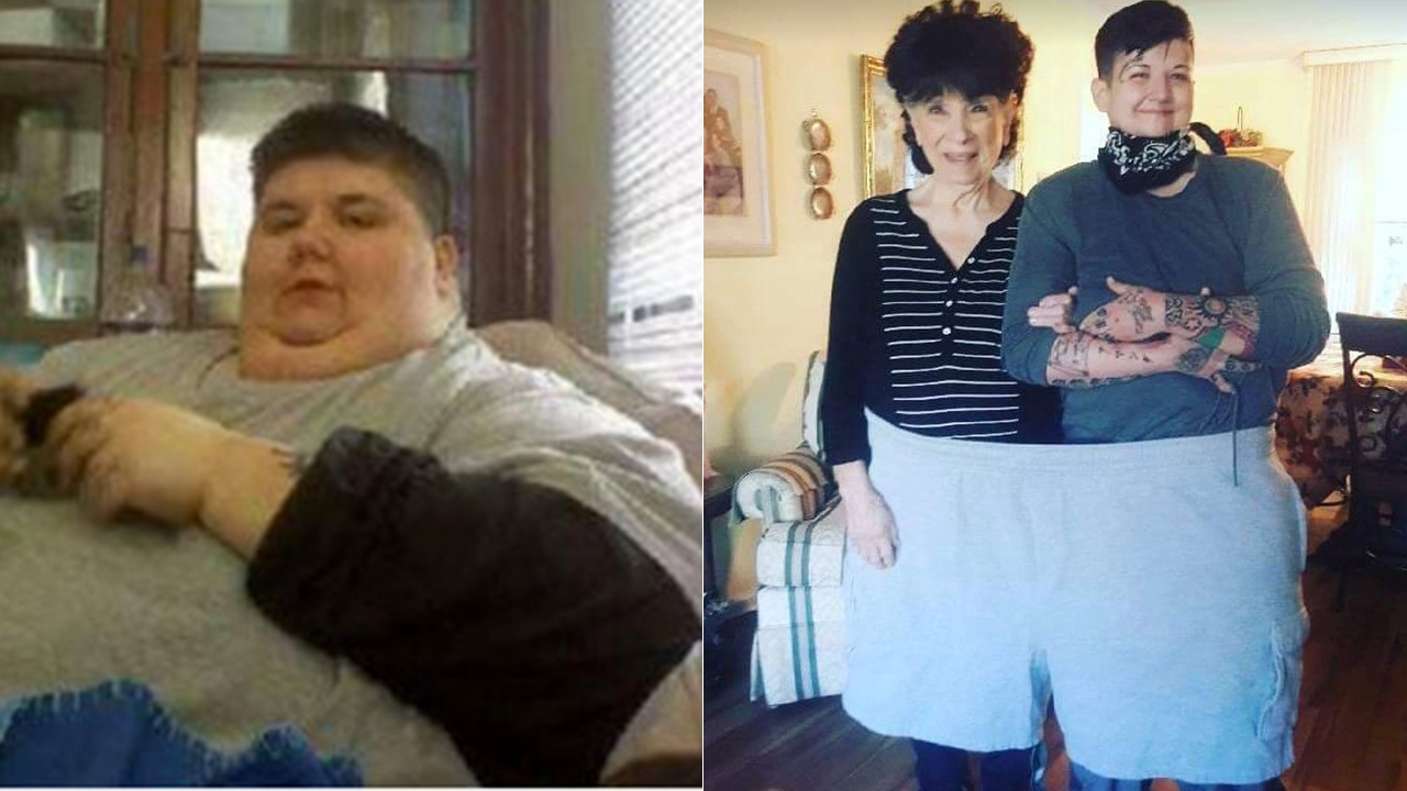Lady drops 500 kilos after shedding tongue to most cancers: 'I'm alive for the very first time in my existence' - Fox Info thumbnail