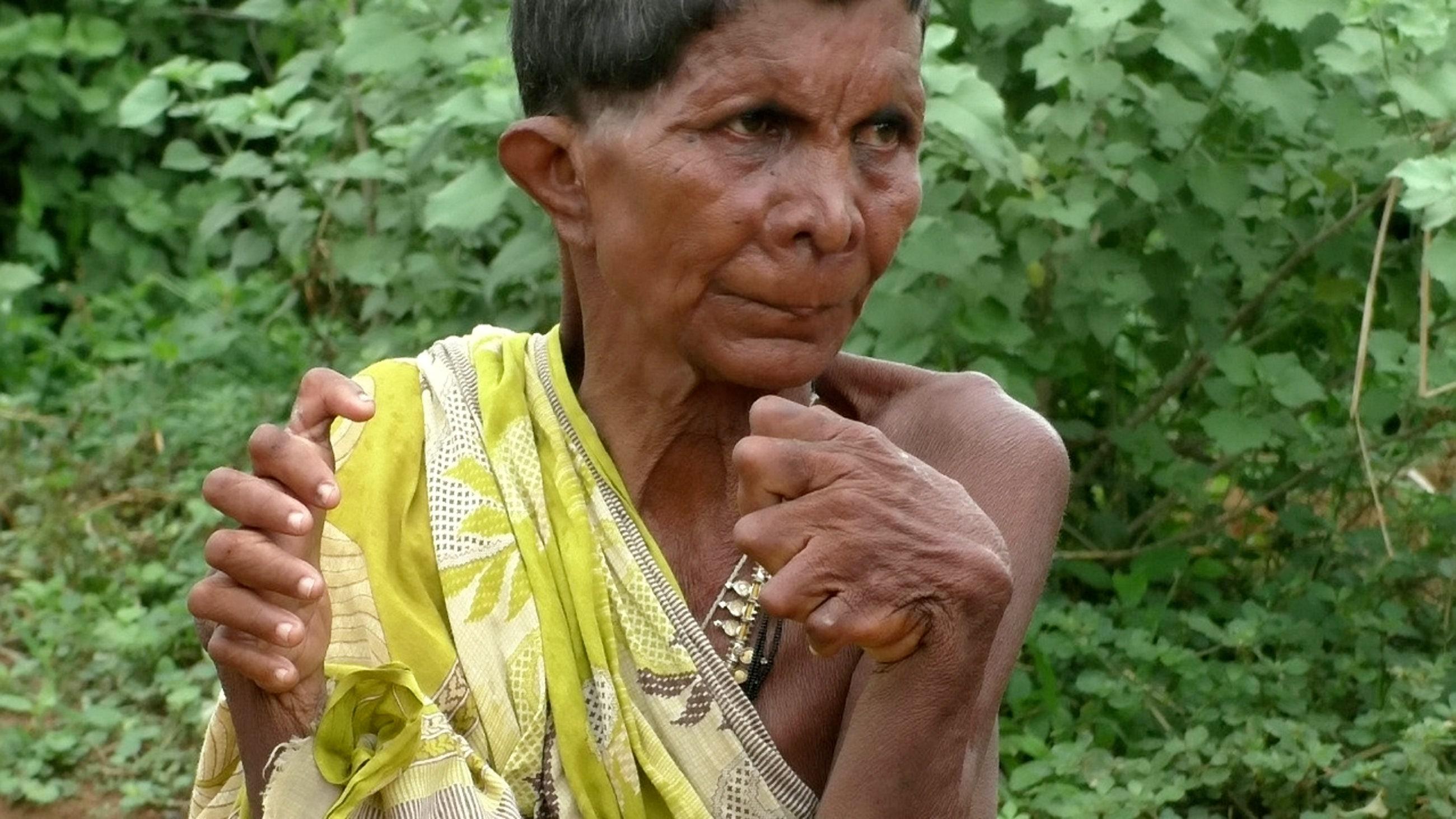 Frau geboren, mit 20 Spitzen, 12 Finger, sagt Nachbarn nennen Sie eine 'Hexe'