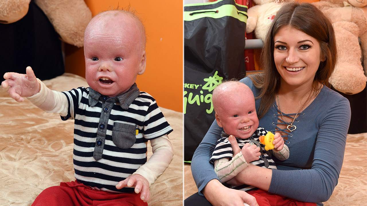 Boy, 2, has rare 'scale'-like skin condition that affects 1 in 500,000: 'He's overcome so much'