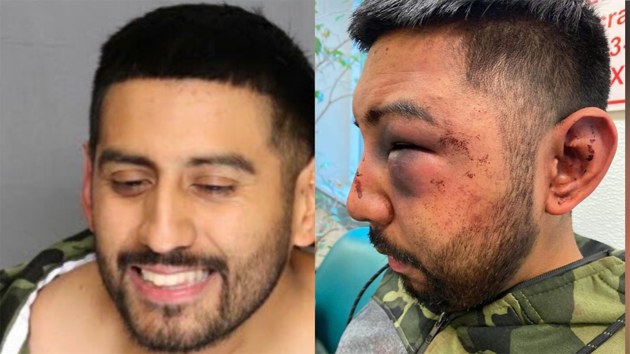 Westlake Legal Group JACOB-SERVIN-BEAT-BOOKING California man accused of drunken attack on jail guards during arrest claims he was victim of 'racist' beating: reports fox-news/us/us-regions/west/california fox-news/us/crime/police-and-law-enforcement fox-news/us/crime fox news fnc/us fnc Brie Stimson article 32c26ef4-0113-52ed-982a-9e3f979d82e5