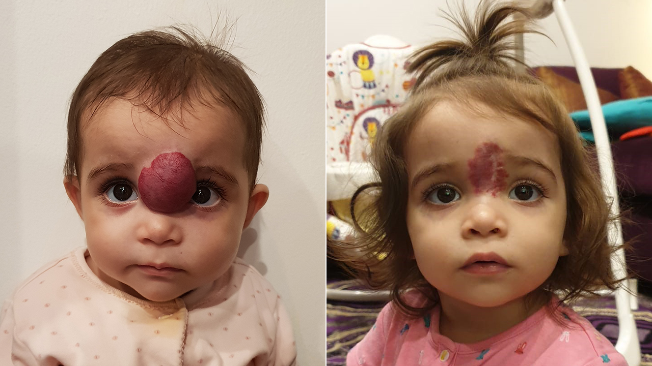 Toddler with facial growth undergoes life-changing surgery in US