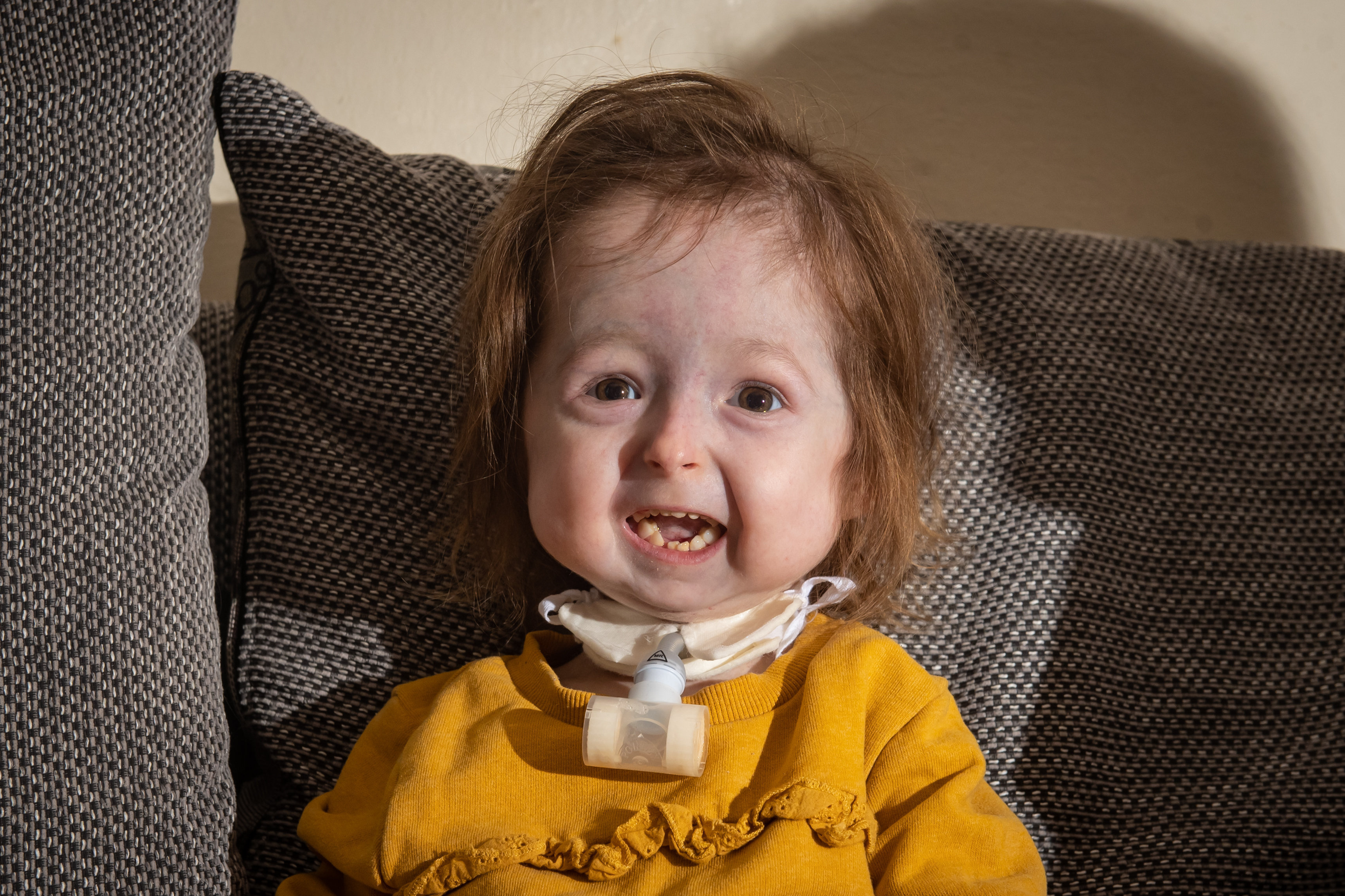 Girl, 2, with rare form of 'Benjamin Button disease' weighs just 15 pounds