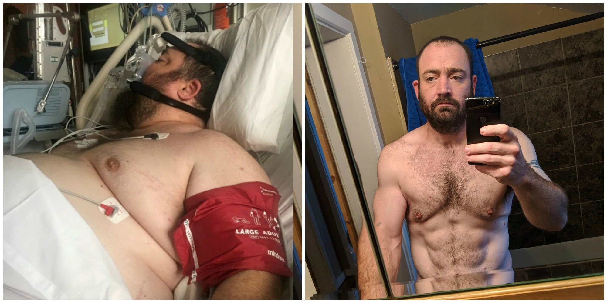 Iowa man sheds half his body weight after invasive spinal surgery, says he once ate 'with no constraint'