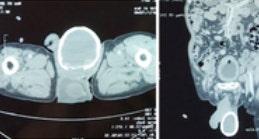 人間の腫脹があり、骨testicleによる寄生虫感染の事例報告
