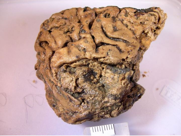 'Heslington brain' resisted rotting for 2,600 years — now scientists know why