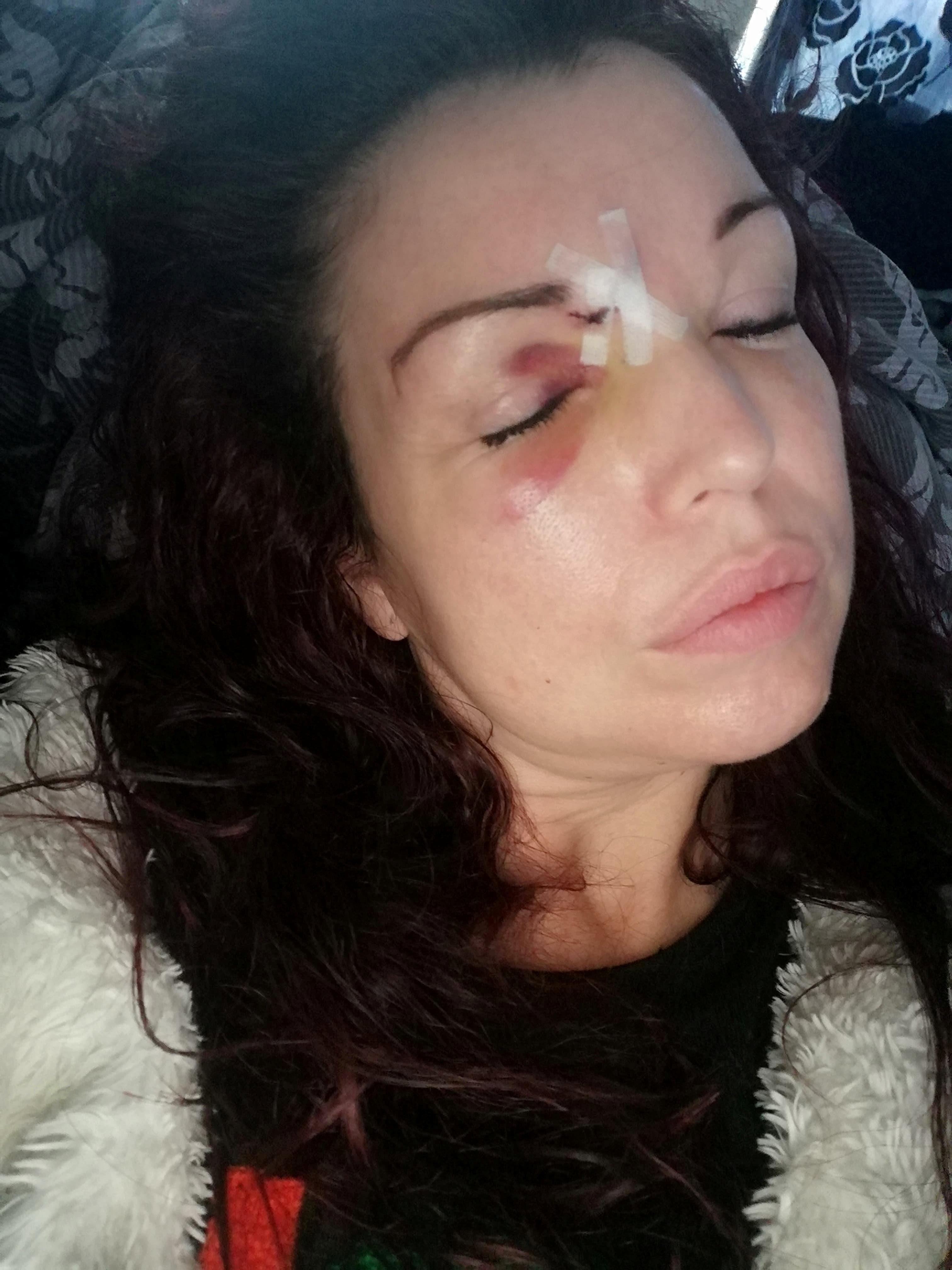 Mom says she nearly lost eye after Christmas present she bought son shot into face