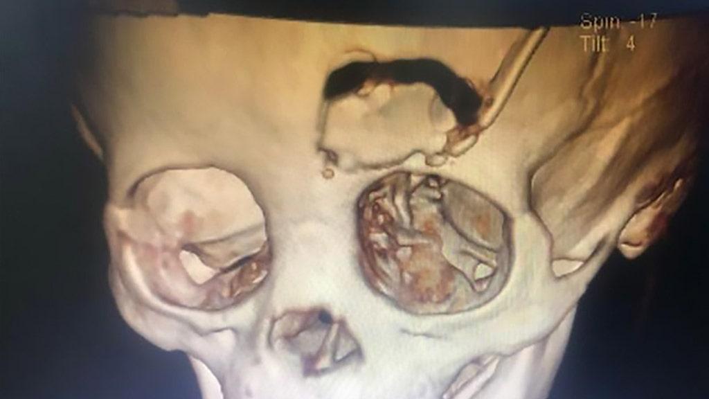 Kleinkind Frakturen Schädel nach Bleistift spießt Auge, Bericht sagt