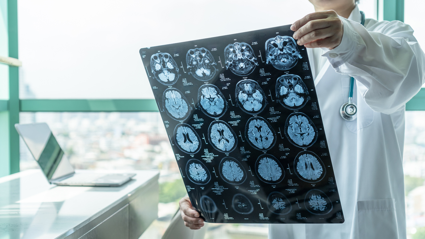 'Concerning increase' of coronavirus-related inflammatory brain condition, study finds