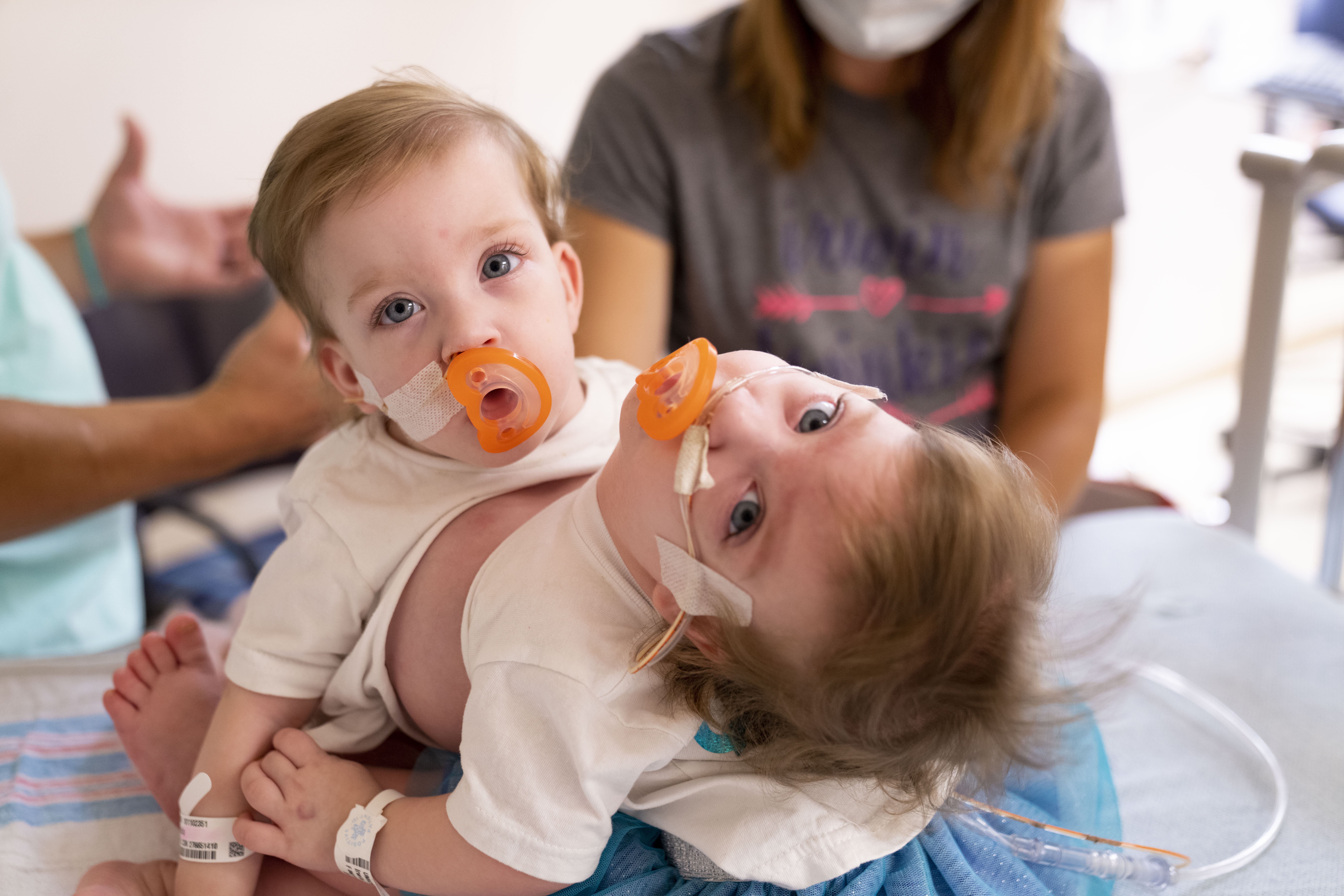 Conjoined Michigan twins separated in 11-hour surgery