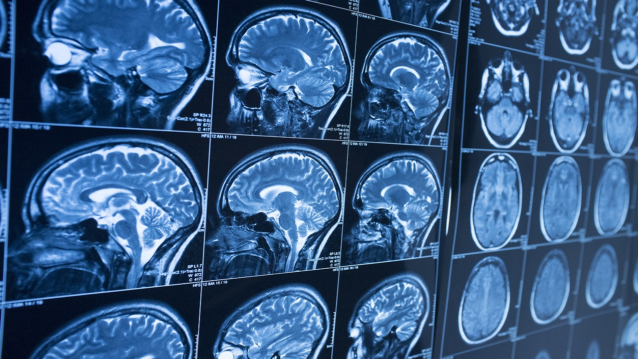 Brain scans of coronavirus patients suggest 'significant' grey matter loss over time: study - Fox News