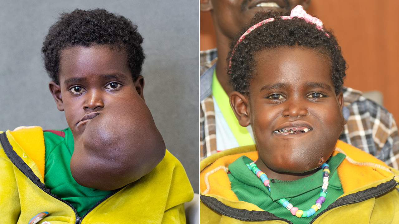 5-year-old undergoes lifesaving surgery to remove massive growth on face, neck