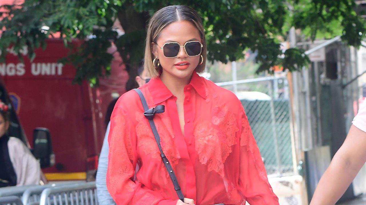 Chrissy Teigen says she had fat removed from her cheeks: 'No shame in my game'