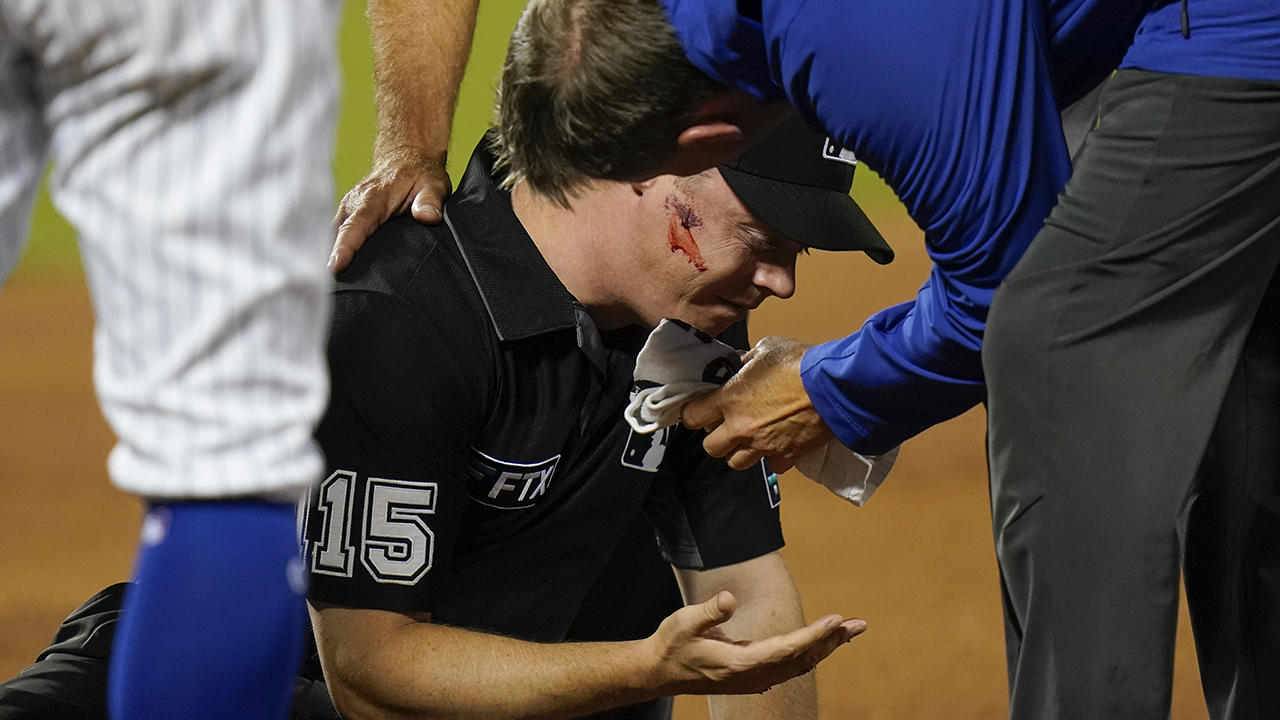 MLB umpire hit in face with baseball on errant throw during Cardinals-Mets game – Fox News