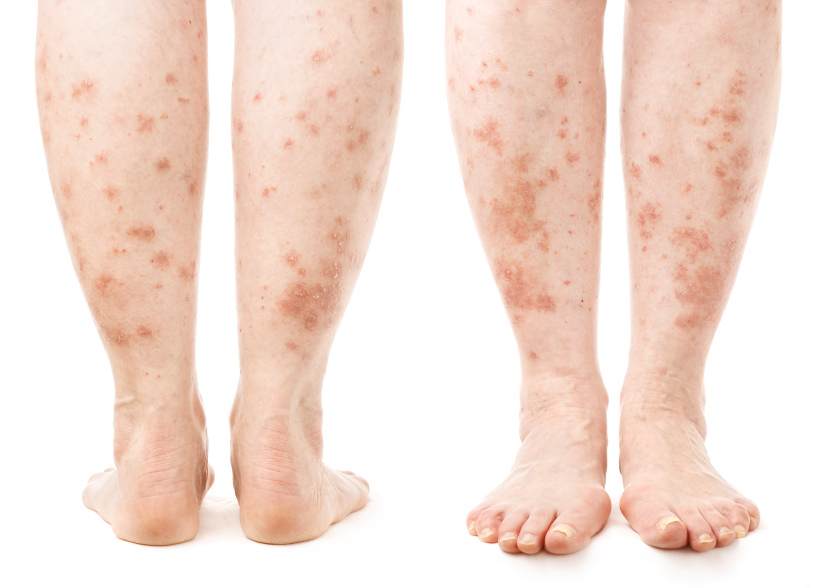 Medical Conditions That Cause Itchy Skin | LIVESTRONG.COM