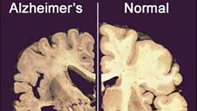 Scientists stop brain cells in mice from dying in potential Alzheimer's treatment breakthrough