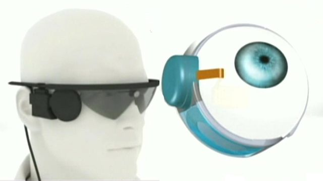 World's only bionic eyes keep getting better
