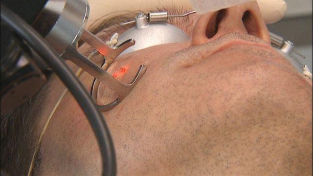 health procedure gets acne scars treatment